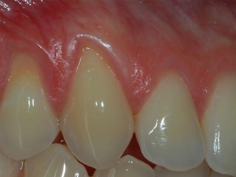 Parodontologie-session-3-bis-avant