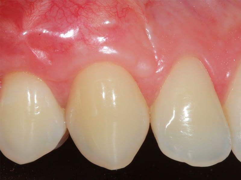 Parodontologie-session-3-bis-après