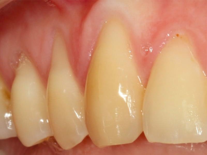 Parodontologie-session-3-avant
