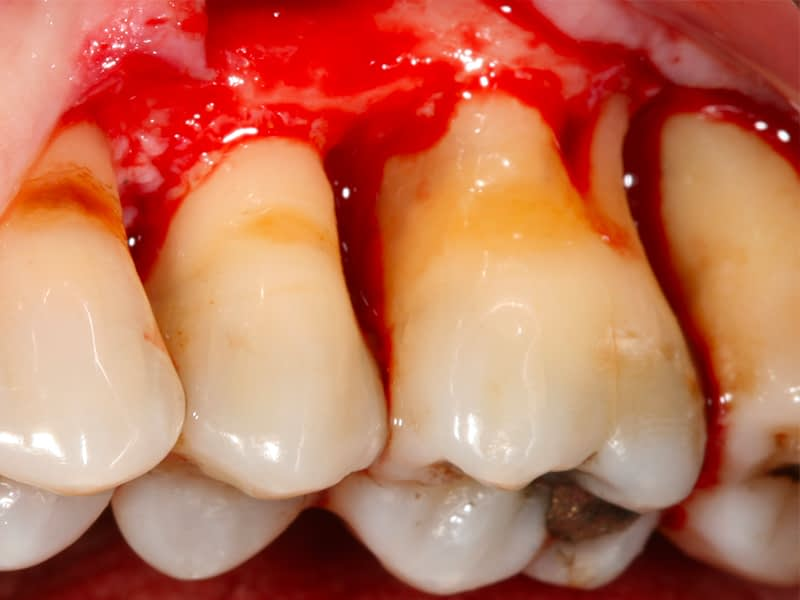 Parodontologie-session-2-chirurgie