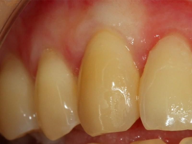 Parodontologie-session-3-après