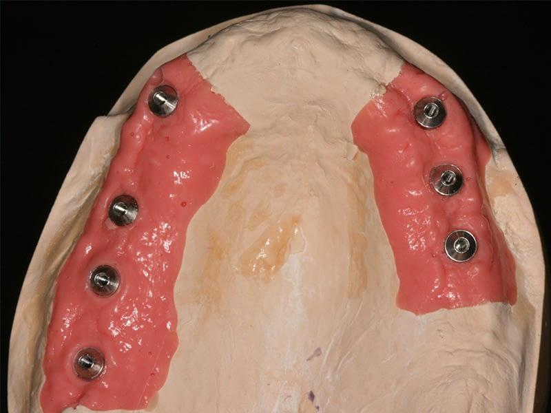 Implantologie-session-2